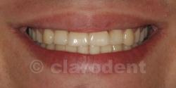 Ortodontie Caz 10