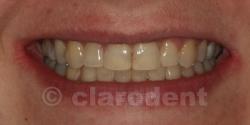 Ortodontie Caz 2