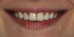Ortodontie Caz 3