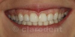 Ortodontie Caz 4