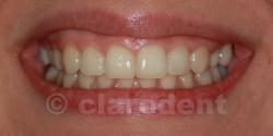 Ortodontie Caz 6