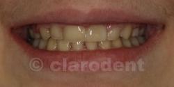 Ortodontie Caz 7