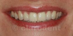 Ortodontie Caz 8