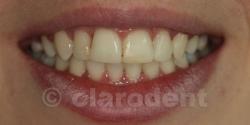 Ortodontie Caz 9