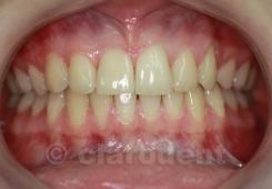 Ortodontie Caz 1