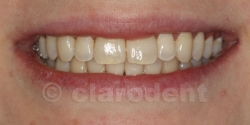 Ortodontie Caz 5